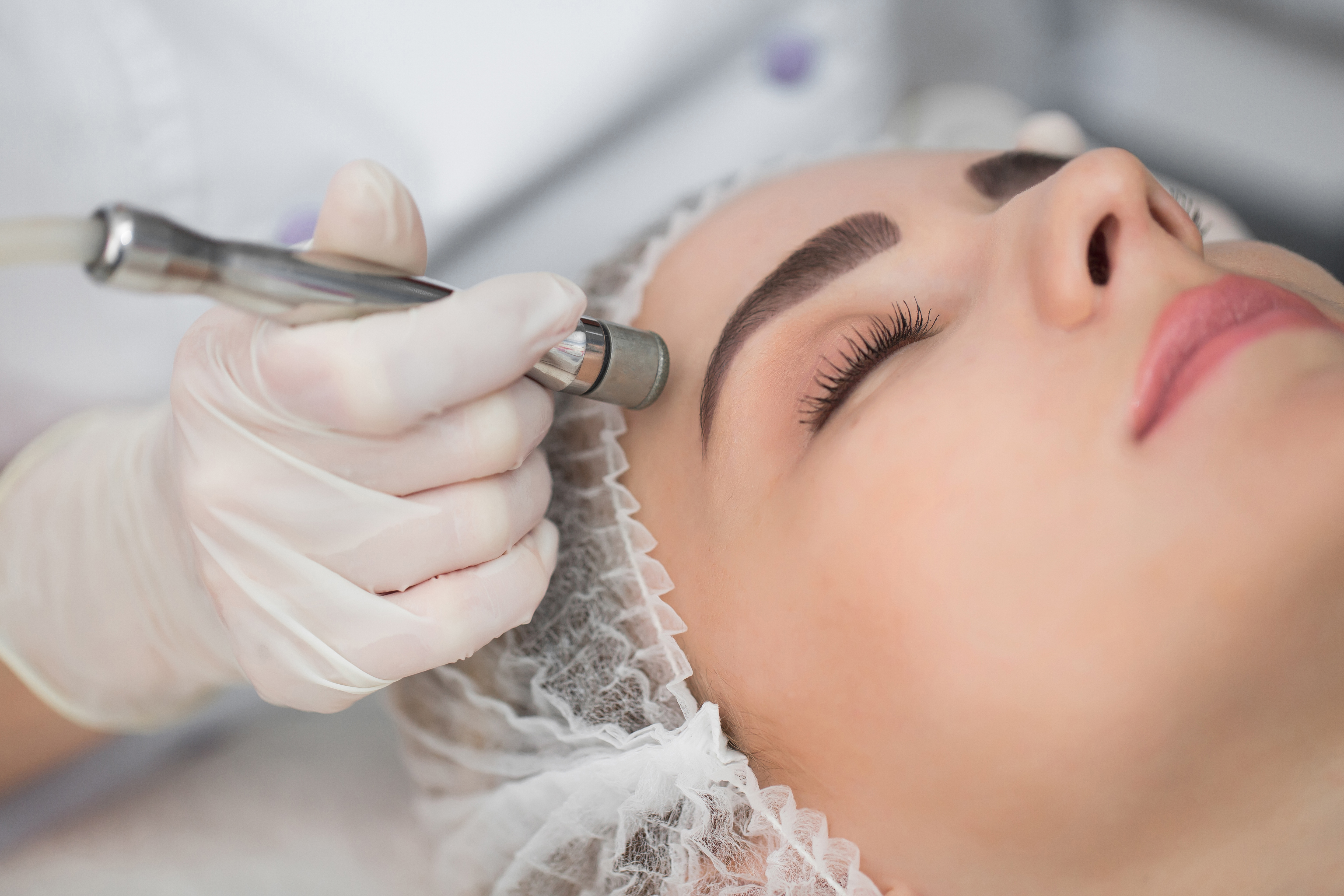 Woman getting a microdermabrasion done